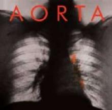 Aorta - de Aorta