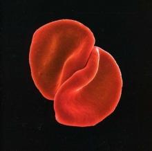 Peter Gabriel - Scratch My Back